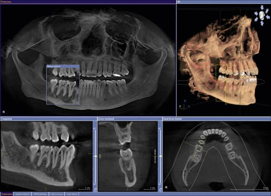 Cat Scan Dentistry Chattanooga