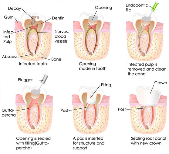 Root Canal Treatments Chattanooga