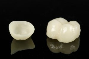 porcelain dental crowns Chattanooga