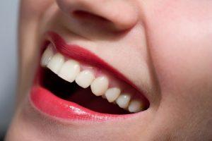 Laser Gum Recontouring Chattanooga