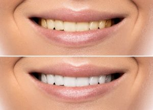 teeth whitening Before & after patient in Chattanooga